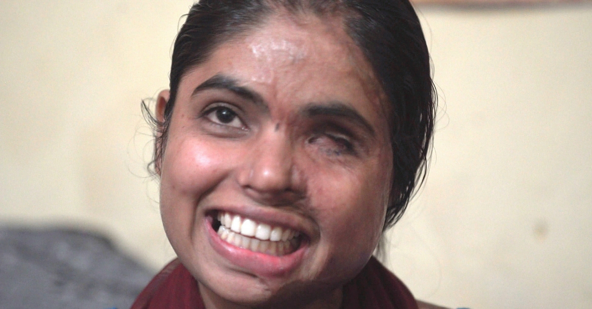 TBI BLOGS: 13 Surgeries Later, This Acid Attack Survivor Still Has the Spirit to Fight it Out