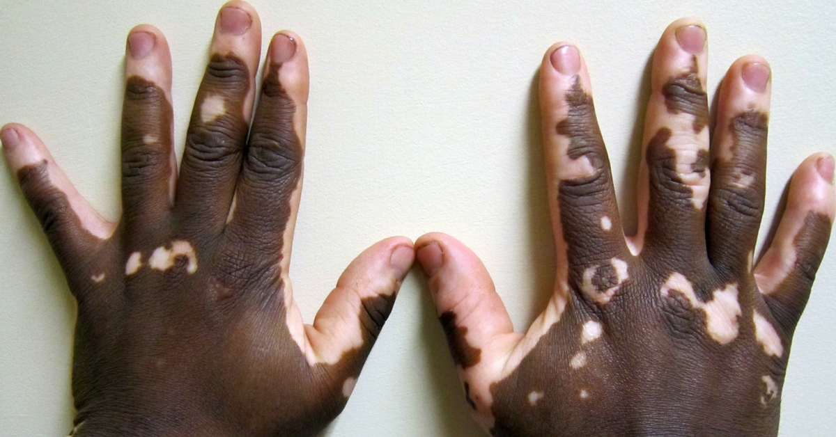 An Ayurvedic Drug Developed by DRDO Scientists Can Ease Vitiligo!