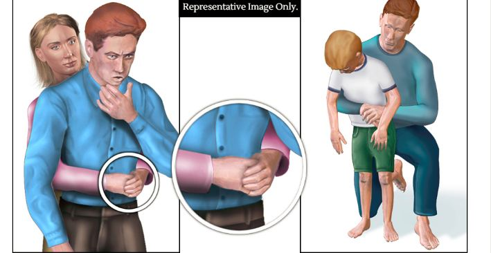 First aid for choking aims to dislodge the stuck particle. Representative Image Only. Image Credit: Wikimedia Commons