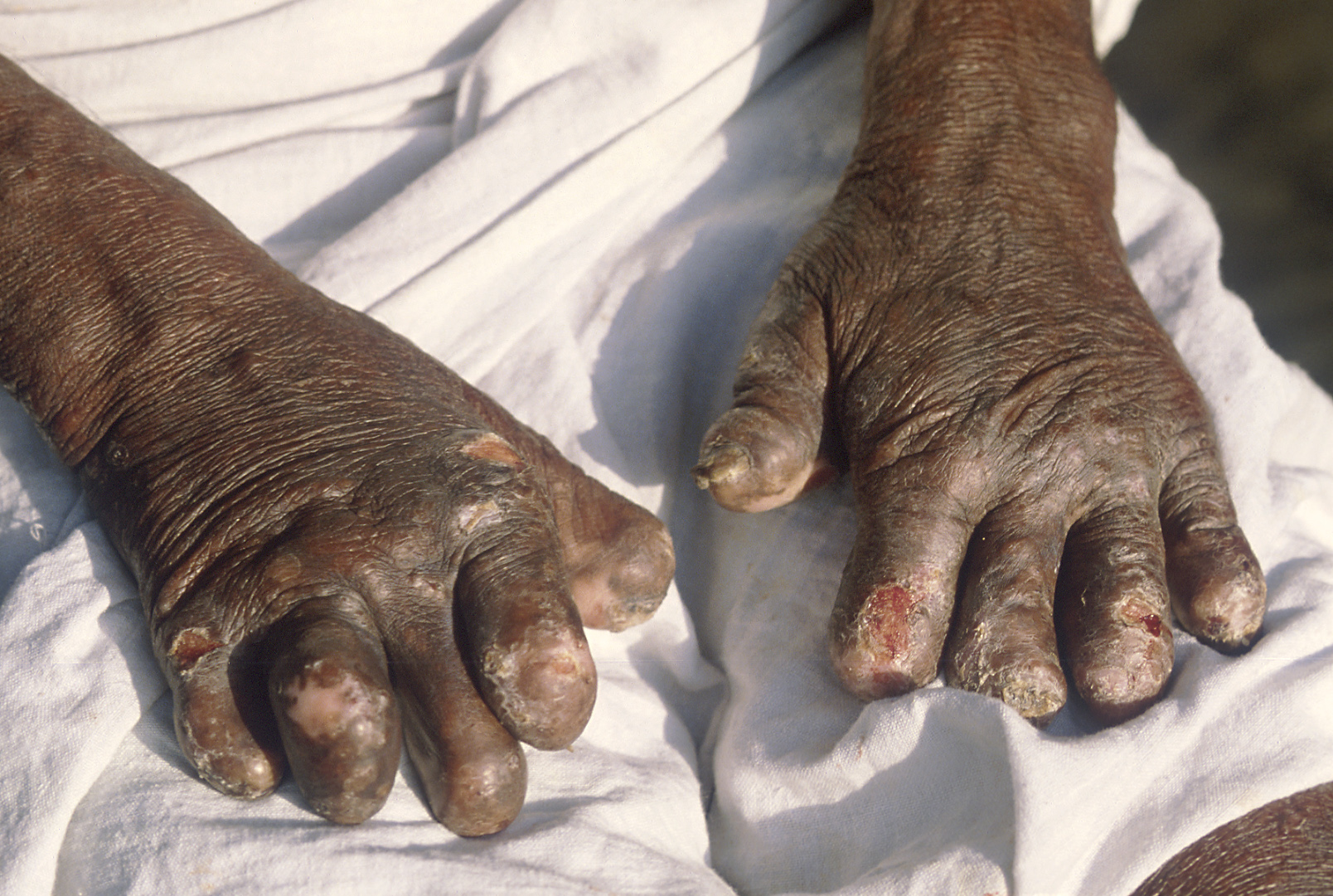 Leprosy-inflicted deformities on the hands. (Source: Wikimedia Commons)
