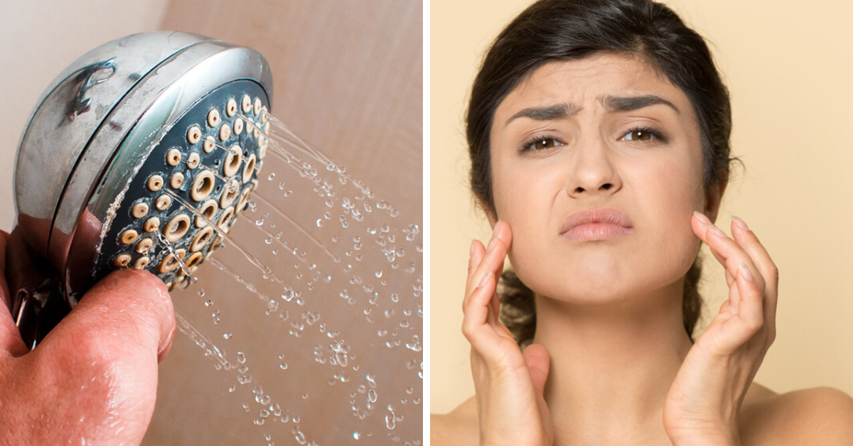 Hard Water Ruining Your Skin? 5 Simple Steps To Keep It Soft And Hydrated!