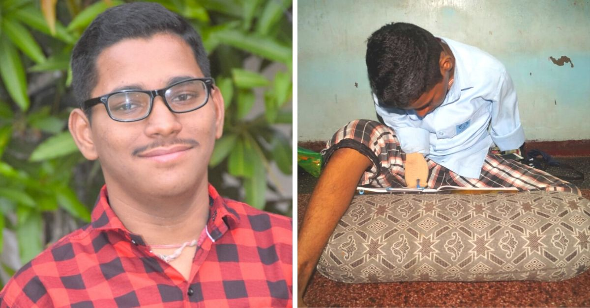 I Lost My Hands & A Leg In An Accident. Here's How I Aced My Class 12 Exams
